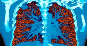 تشخیص سریع سرطان ریه